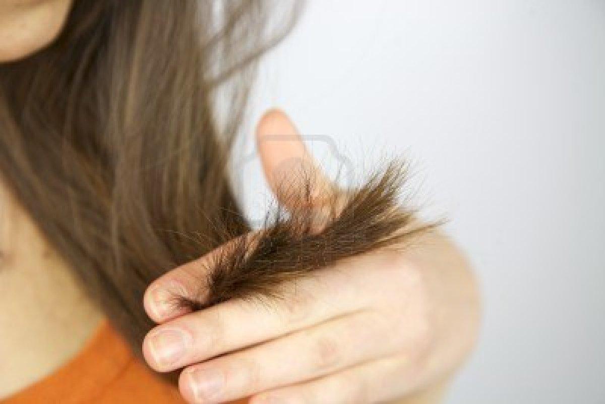 Выпадаю волосы у ребенка после года