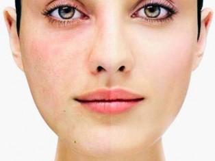 Как избавиться от покраснения коже