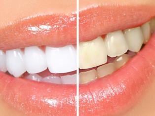 Отбеливание и чистка зубов